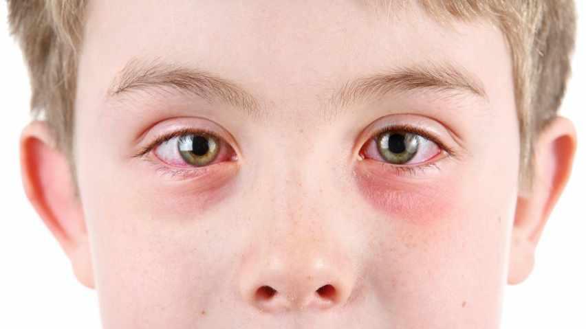 Un niño pequeño con conjuntivitis u ojos rojos