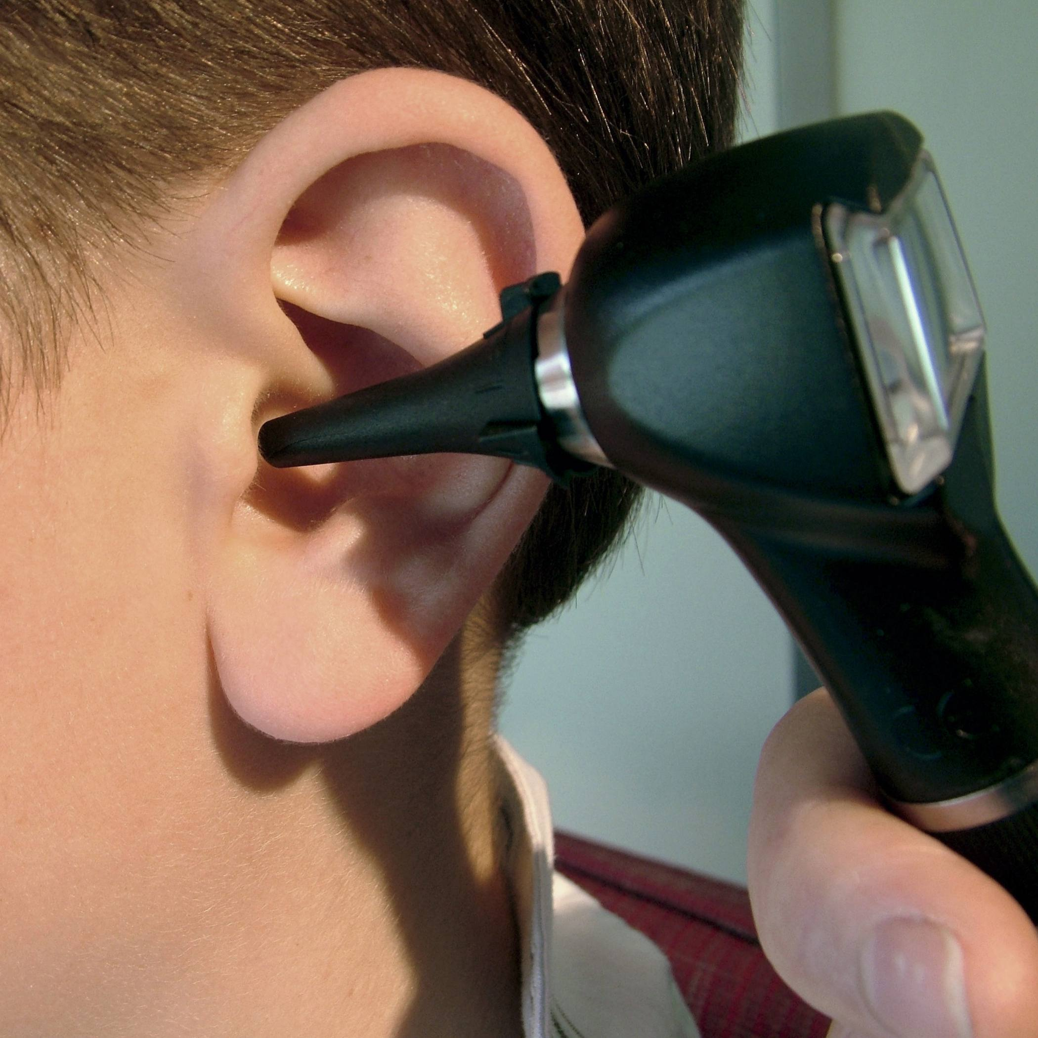 a closeup of a young boy's ear with a person looking in the ear with an otoscope
