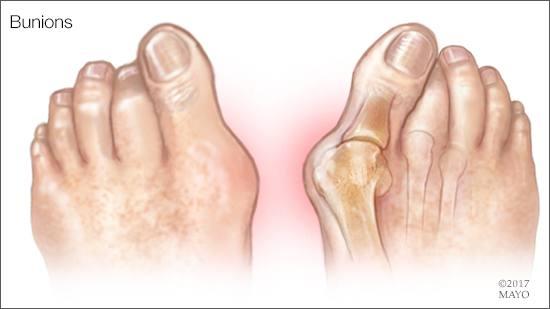 Ilustración des pies con juanetes
