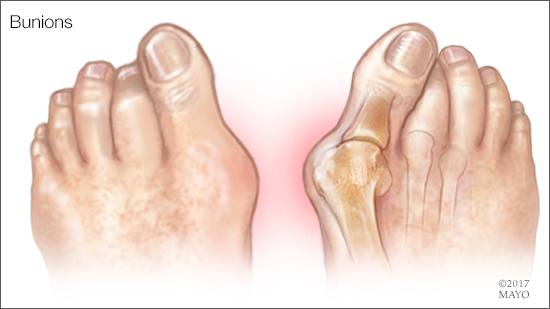 a medical illustration of bunions