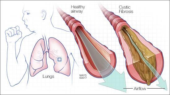Ilustración médica de la fibrosis quística