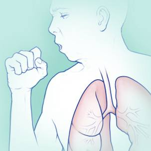 a medical illustration of cystic fibrosis