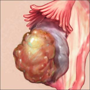 a medical illustration of ovarian cancer