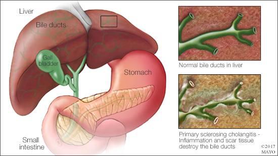 Ilustración médica de la colangitis esclerosante primaria