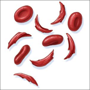 a medical illustration of sickle cell anemia