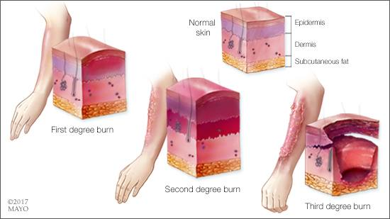 a medical illustration of the layers of normal skin and with first, second and third degree burns