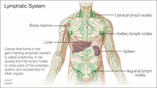 a medical illustration of the lymphatic system and lymphoma