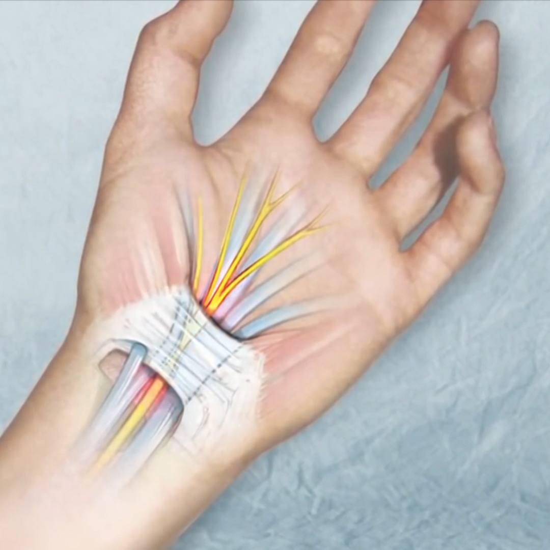 medical illustration of wrist carpal tunnel
