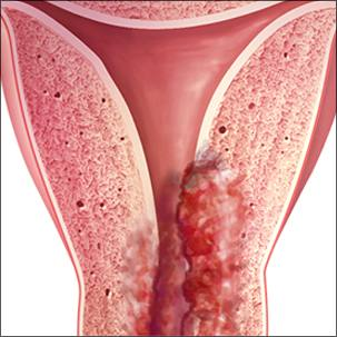 a medical illustration of endometrial cancer