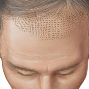 a medical illustration of hair transplants using micrografts