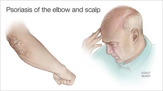 Ilustración médica de un hombre con psoriasis en el codo y en el cuero cabelludo