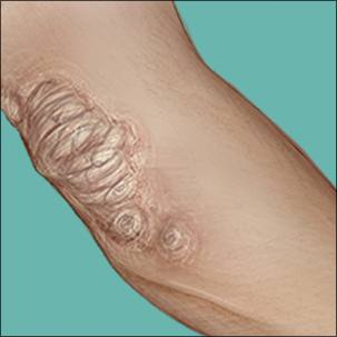 a medical illustration of psoriasis on an elbow