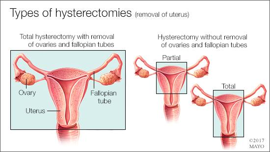 medical illustration of the various types of hysterectomies