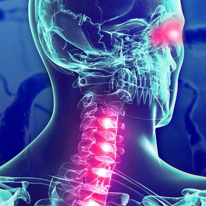 3-D image of spinal cord in neck