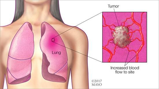 a medical illlustration of lung cancer