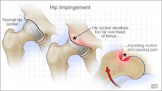 Ilustración médica de un acetábulo normal de la cadera y de otro con pinzamiento