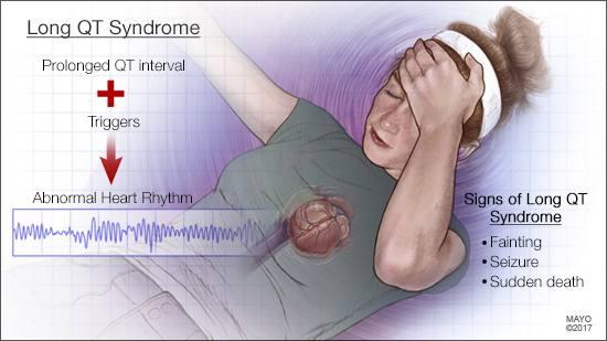 Ilustración médica del síndrome del intervalo QT largo