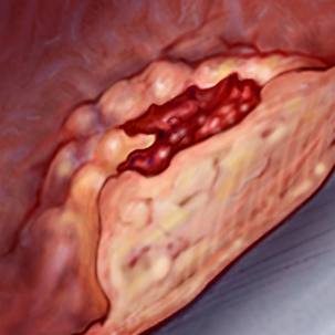 a medical illustration of stomach cancer