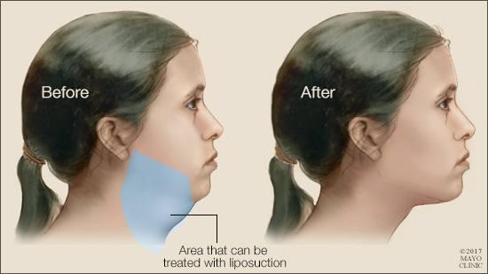 Ilustración médica de los resultados de la liposucción en el mentón y cuello de una mujer.