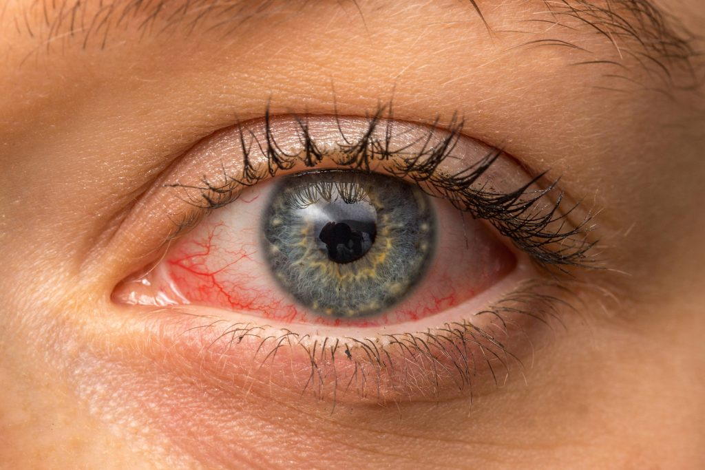 Mayo Clinic Q and A: When does pinkeye require treatment?