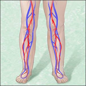 a medical graphic of edema and leg swelling