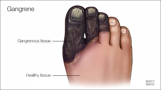 a medical illustration of gangrene of the toes