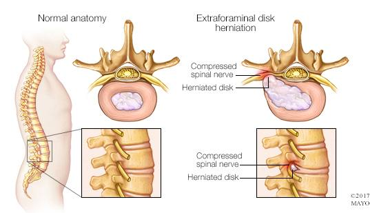 a medical illustration of normal spinal anatomy and a herniated disk