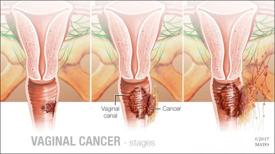 a medical illustration of the stages of vaginal cancer