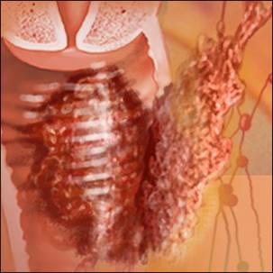 a medical illustration of vaginal cancer