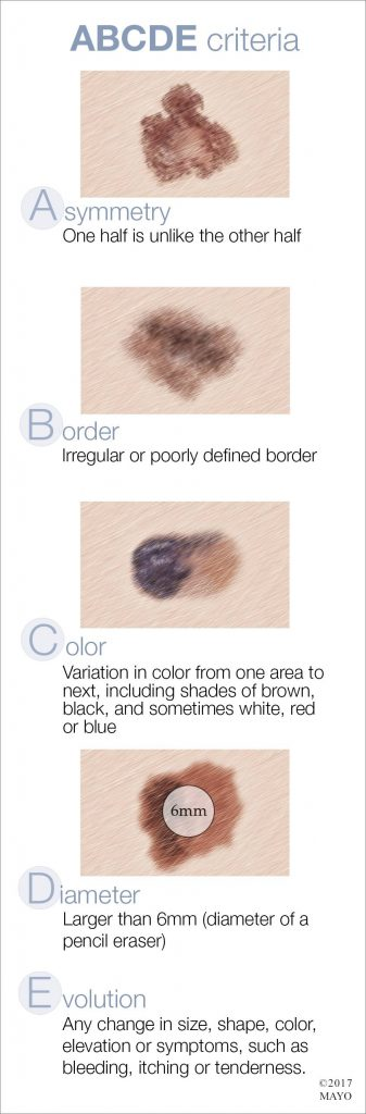 an image of the ABCDE criteria used to identify characteristics of unusual moles that may indicate melanomas or other skin cancers