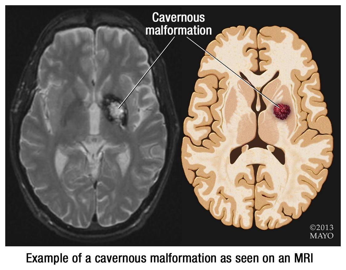 MRI of brain showing cavernous malformation