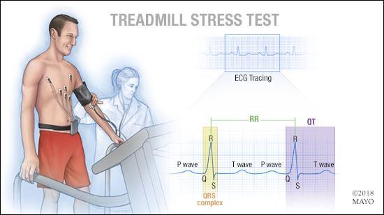 Ilustración médica de una prueba de esfuerzo en la cinta de andar