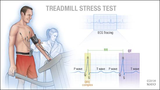 a medical illustration of a treadmill stress test