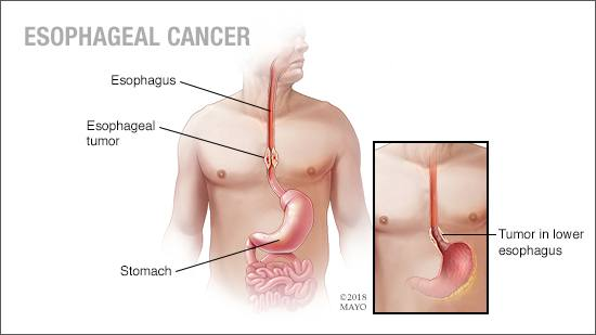 a medical illustration of esophageal cancer