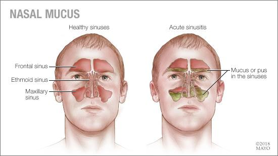 sinus thick mucus how to clear