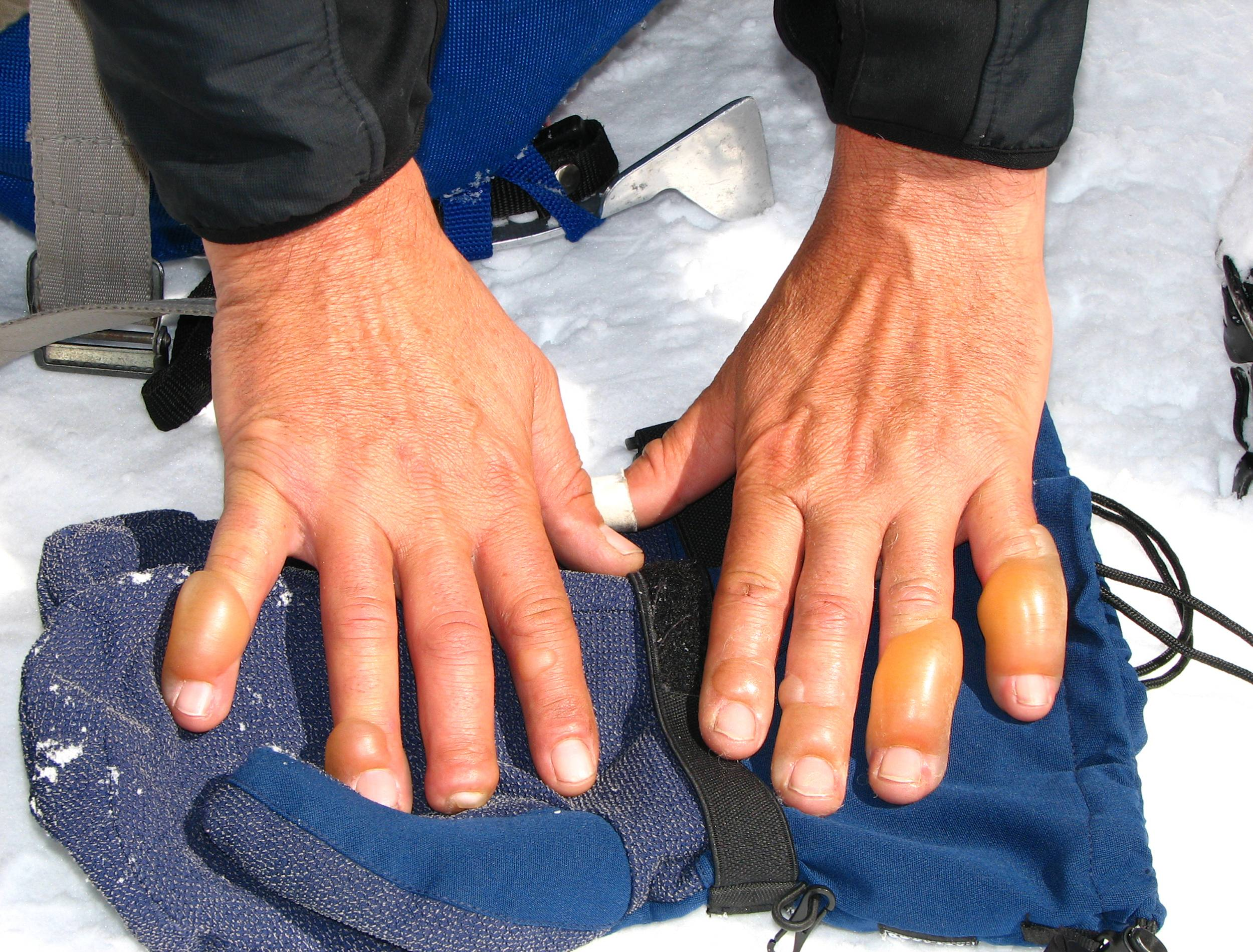 closeup of hands swollen and suffering in the cold from frostbite