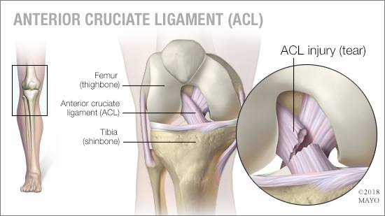a medical illustration of an ACLtear