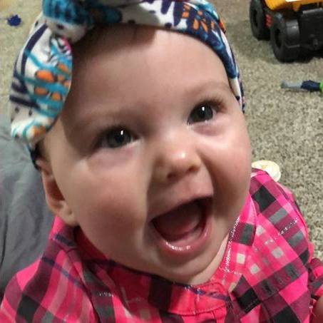 patient with heart defect, baby Marbree Ustby smiling