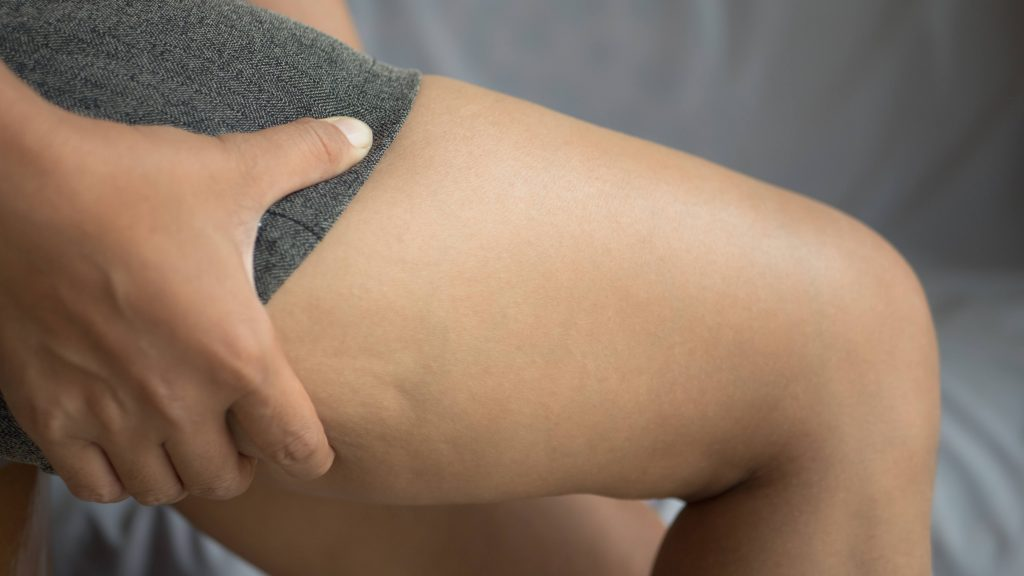Acercamiento de un muslo femenino con celulitis.
