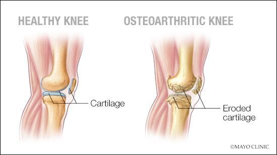 Ilustración médica de una articulación sana de la rodilla y de otra con osteoartritis