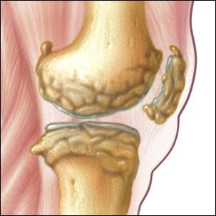 a medical illustration of a knee joint with osteoarthritis