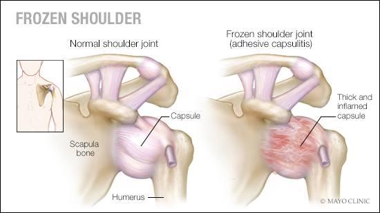 Ilustración médica de una articulación normal  del hombro y otra de un hombro congelado (capsulitis adhesiva)