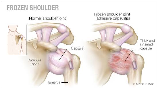 a medical illustration of a normal shoulder joint and one with frozen shoulder (adhesive capsulitis)