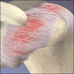 a medical illustration of frozen shoulder (adhesive capsulitis)