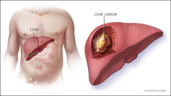 Ilustración médica del cáncer de hígado