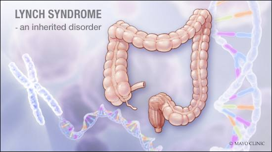 a medical illustration of Lynch syndrome