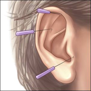 a medical illustration of acupuncture, with three needles inserted into an outer ear