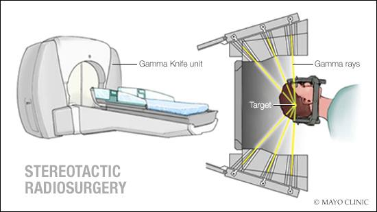 a medical illustration of stereotactic radiosurgery
