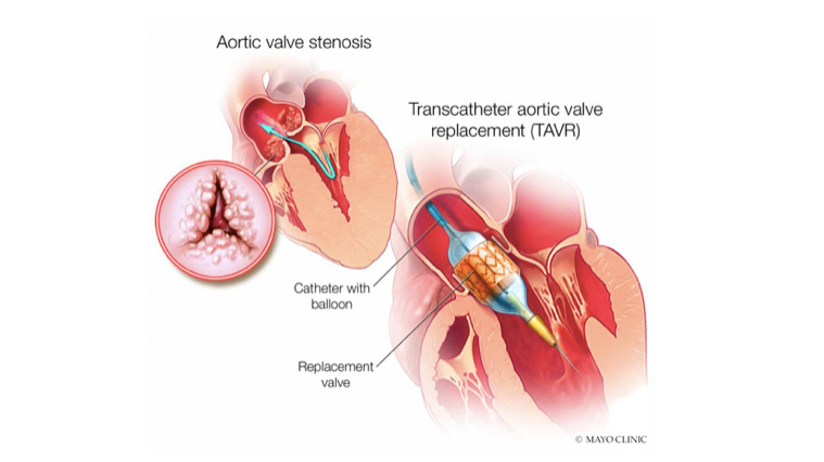 Mayo Clinic Radio Transcatheter Aortic Valve Replacement Mayo