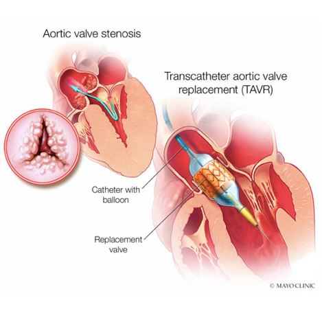 Medical illustrations of transcatheter aortic valve replacement